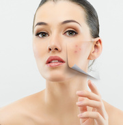 Revitol Rosacea Treatment